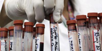 Université de Miami : Un pas de plus vers un vaccin contre le SIDA.