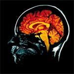 Accident vasculaire cérébral ischémique : une étude de grande ampleur au Maroc