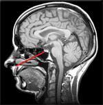 L'intérêt de la technique mini-invasive d'exérèse des adénomes hypophysaires