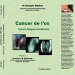 Cancer de l'os : la vision du chirurgien face aux tumeurs osseuses malignes