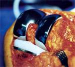 Tout sur la chirurgie de la prothèse du genou