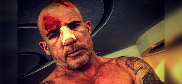 Prison Break : Dominic Purcell se blesse lors du tournage à Ouarzazate